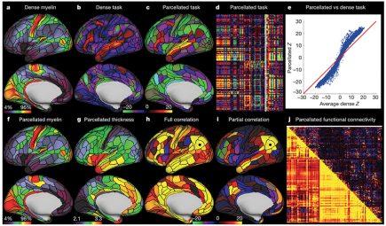Sémiologie graphique soignée pour cette nouvelle représentation du cerveau humain !